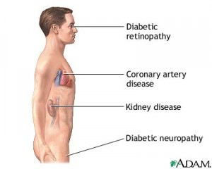 Long term complications of diabetes if blood sugar levels are not kept under control